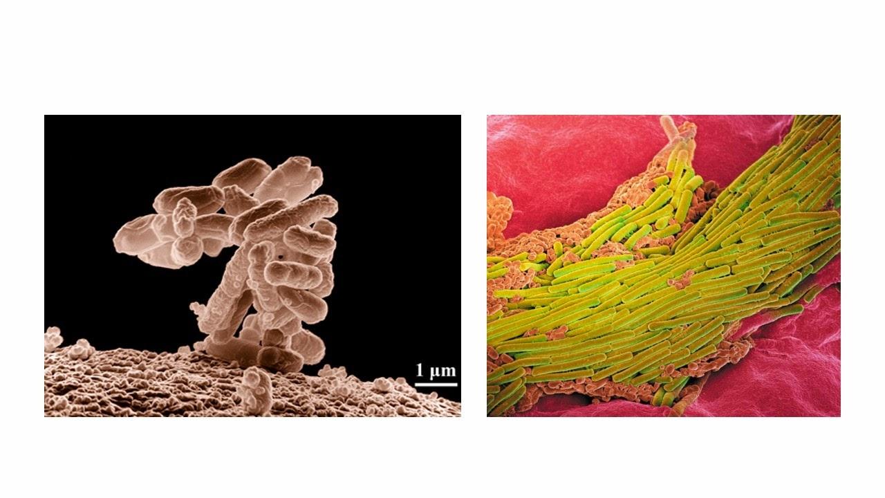 จุลินทรีย์ในลำไส้